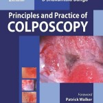 Principles and Practice of Colposcopy, 2nd Edition