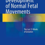 Development of Normal Fetal Movements: The Last 15 Weeks of Gestation