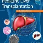 Pediatric Liver Transplantation : A Clinical Guide